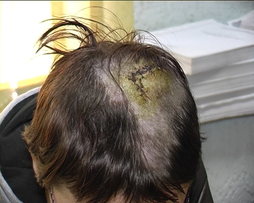 рана на голове шить