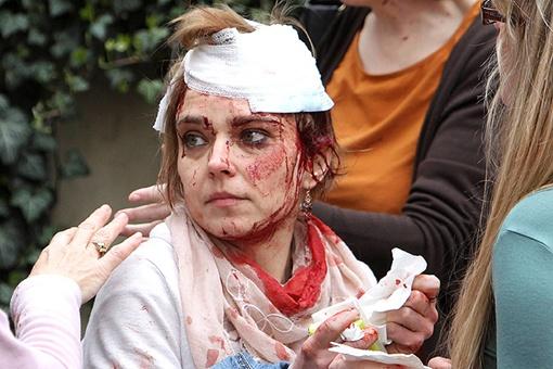 Одна из десятков пострадавших от взрыва в центре Праги Фото: REUTERS