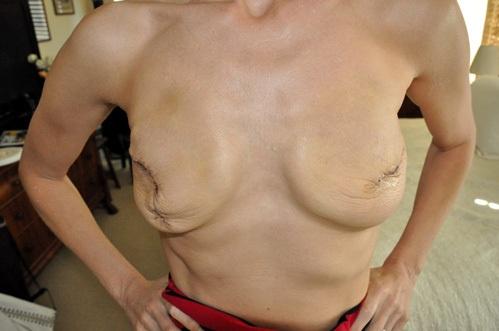 Что такое коррекция груди сколько стоит