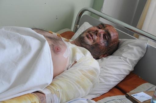 У Павла Татунова глубокая рана в нижней части спины и ожоги лица и туловища. Фото: Павел ВЕСЕЛКОВ.