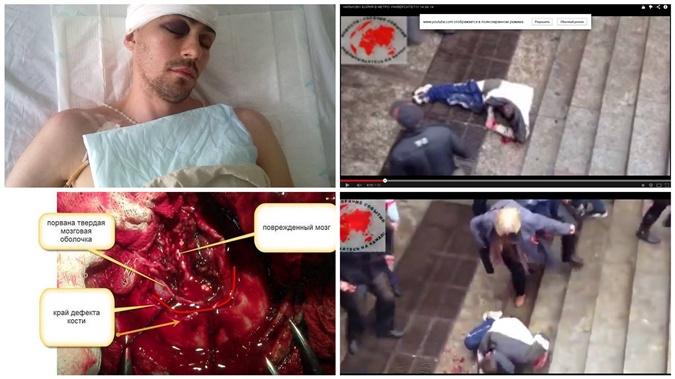 Владимир Силевич после травмы практически полностью восстановился.