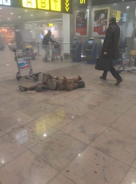 Пострадавший во время терактов в аэропорту.