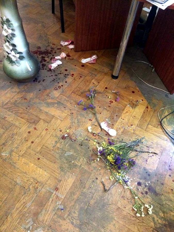 Подробности нападения на львовский РАГС: россиянка облила кислотой сотрудницу учреждения фото 2