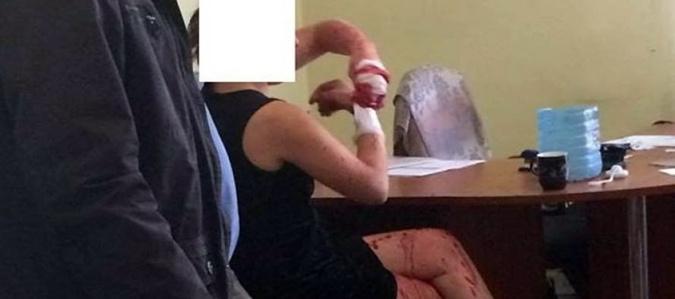 Подробности нападения на львовский РАГС: россиянка облила кислотой сотрудницу учреждения фото 1