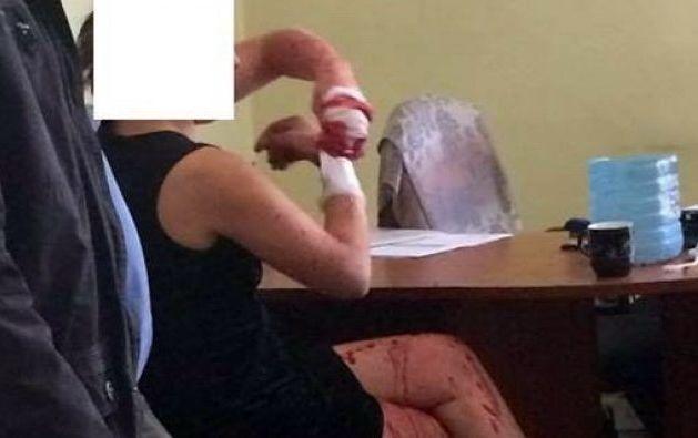 Вкиевском хостеле задержали россиянку, сбежавшую изпсихбольницы Львова