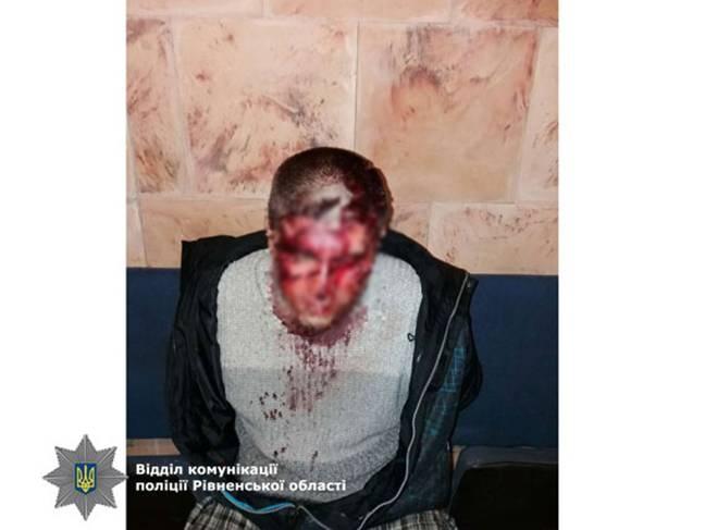 30-летнего мужчину задержали. Фото: rv.npu.gov.ua