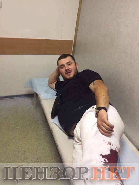 Раненый во время перестрелки. Фото: Цензор.НЕТ