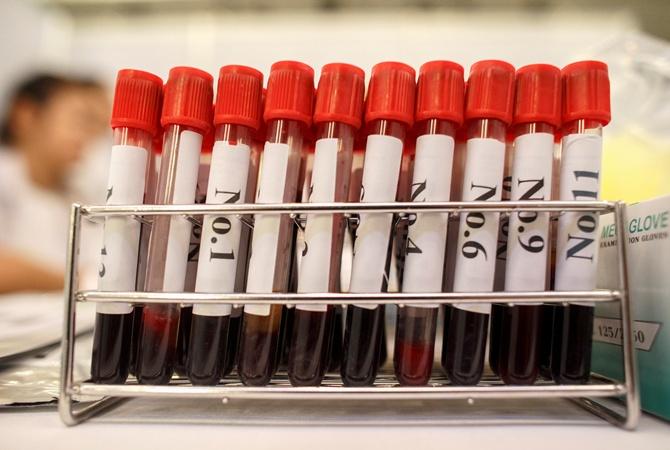 В Африке украли кровь с Эболой