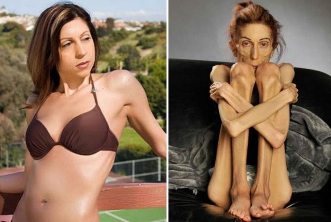 как похудеть в 65 лет