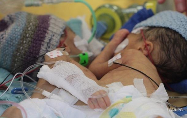В Швейцарии успешно разделили сиамских близнецов Девочки чувствуют себя хорошо