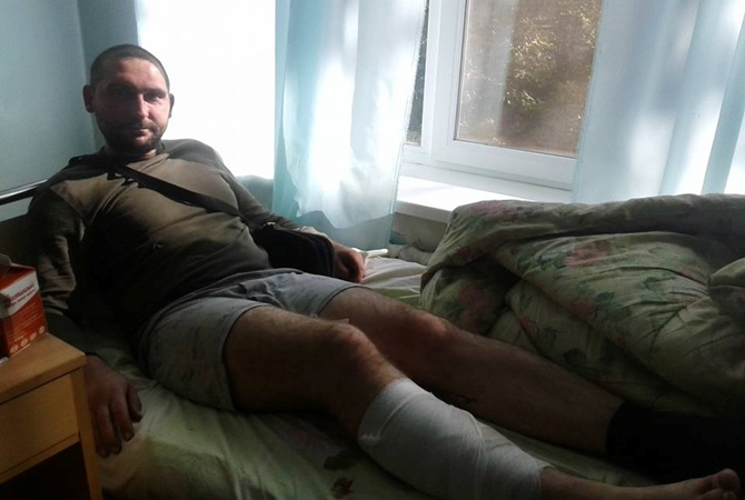 Боевики обстреляли позиции ВСУ под Мариуполем: Военный госпиталь переполнен ранеными