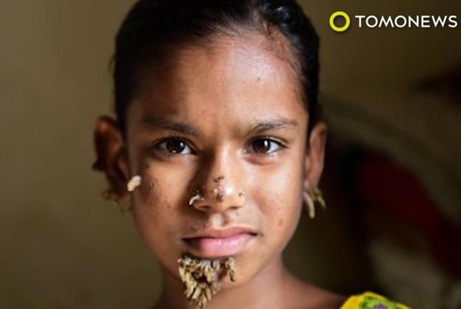 ВБангладеш отыскали 10-летнюю девочку-дерево