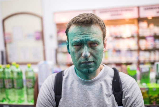Навальный: при нападении зеленку разбавили другим веществом; есть риск неизлечимой травмы глаза