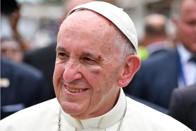 Папа Римский сломал бровь вовремя поездки наавтомобиле