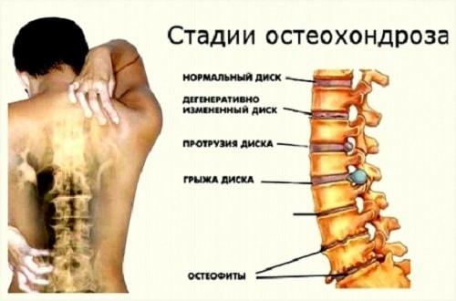 Эффективные упражнения для спины | лучшие упражнения для спины - Новости на  KP.UA