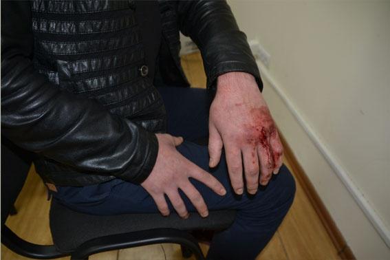 Избивали инспектора ГАИ руками и ногами. Фото: ОСО ГУ МВД Украины во Львовской области