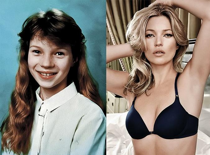 Кейт Мосс в детстве не блистала красотой.