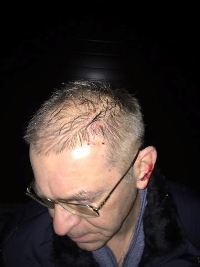 Пашинской заявлял, что его ударили по голове.