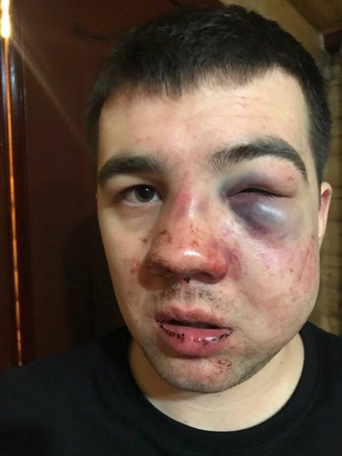 У Александра - многочисленные травмы. Фото: ФБ Селянского