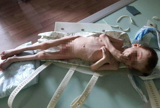 В больнице Вадик за пять дней почти килограмм веса.
