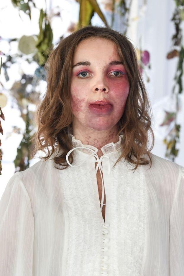 Хлоя Рут, девушка которая родилась с родимым пятном