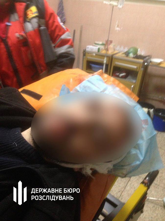 У инспектора патрульной полиции ножевые ранения.