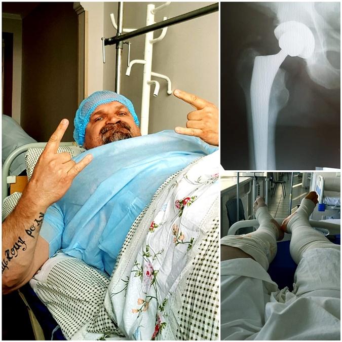 Василий Вирастюк: Сложно осознать, что тебе должны отрезать кусок кости и поставить протез