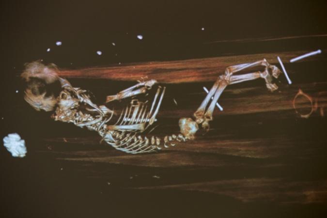 рентген зародыша