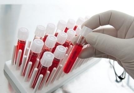 Гепатит - как можно заразиься