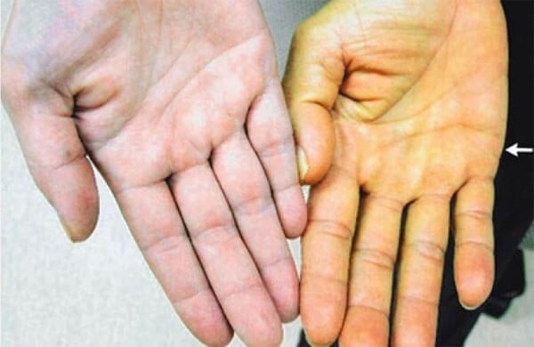 Гепатит и кожа