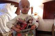 Девочку- старушку  из Винницы спасают  в единственной клинике, где лечат прогерию