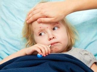 Эра мракобесия: от кори не прививаются, потому что в вакцинах –  ген рабства