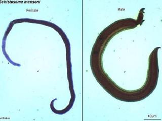 Жительница Запорожья привезла с Бали редких паразитов в легких