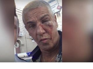 Огромный фингал: опубликовано фото звезды  Такси  Насери после избиения в Москве