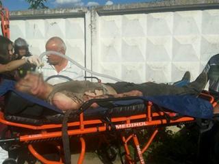 В Минске слесарь загорелся, когда закурил, ремонтируя машину