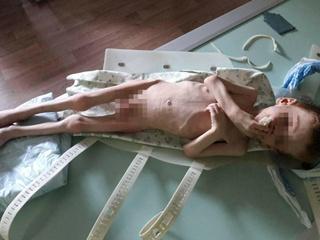 Шокирующая история в Новоукраинке: по дороге в больницу истощенный малыш просил:  Хлебчика! Хлебчика!