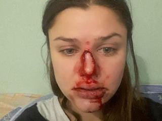 В Киеве психолог заявила о домашнем насилии: в ситуацию вмешался  Юрий Луценко