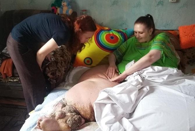 Практически  400 килограмм веса: 60 спасателей несли женщину к«скорой»