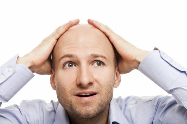 Мед. работники узнали, что мужчины с заболеваниями сердца лысеют ранее доэтого