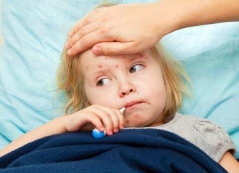 Вкаком случае нельзя делать прививки— Корь вгосударстве Украина