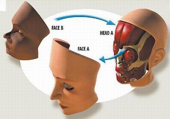 Французские хирурги впервый раз  провели повторную пересадку лица