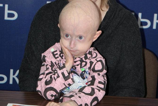 Девочка-старушка: 7-летняя винничанка с редчайшей болезнью надеется на помощь американских медиков