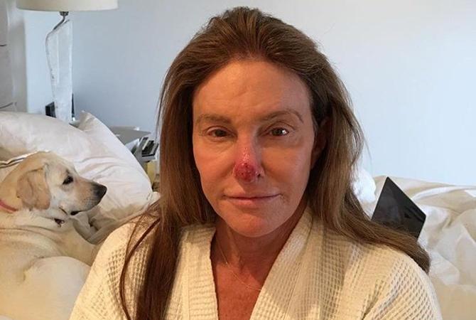 Кейтлин Дженнер обнародовала шокирующее фото в социальная сеть Instagram
