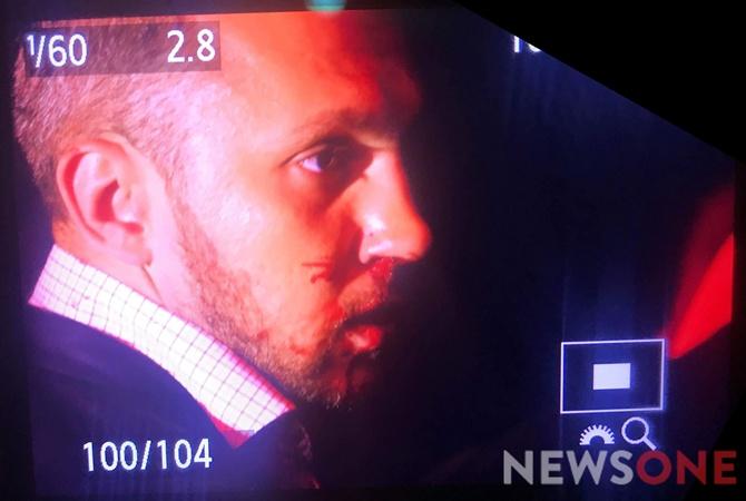 После спора впрямом эфире народный депутат разбил докрови нос соратнику Ляшко