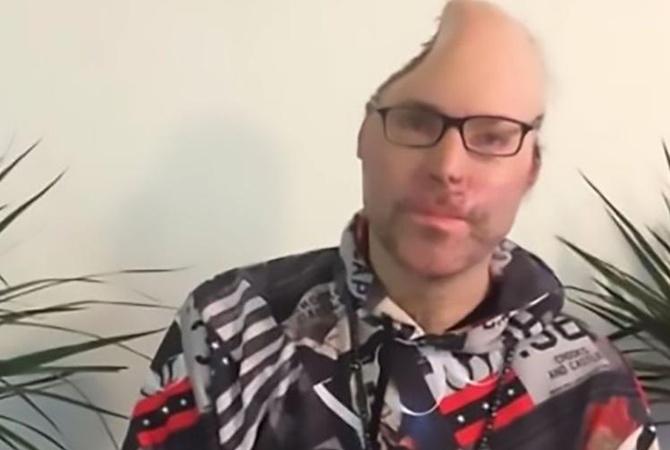 Рэперу Dr. Knarf вырезали пол черепа после взрыва в его нарколаборатории