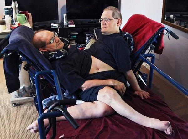 Умерли старейшие в мире сиамские близнецы Ронни и Донни: им было 68 лет